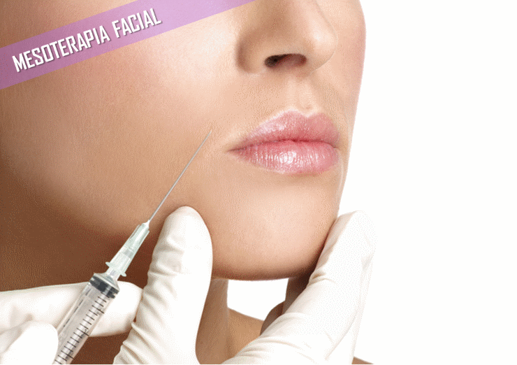 mesoterapia facial madrid
