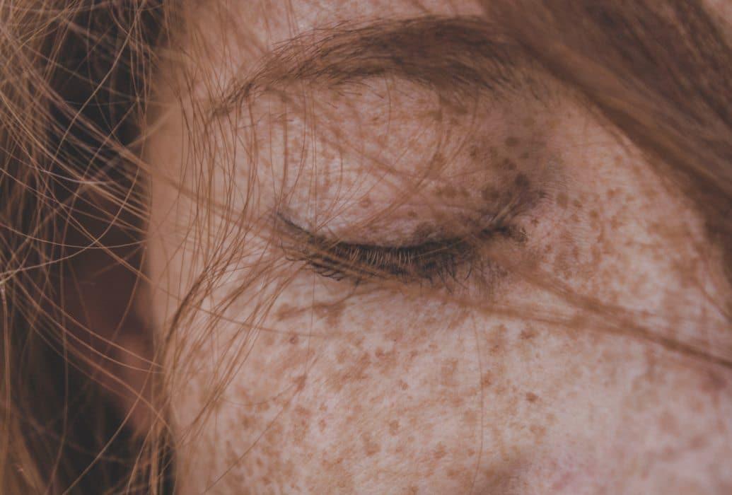 Melasma vascular facial Felicidad Carrera